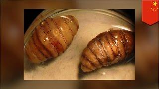 getlinkyoutube.com-Mężczyzna nieświadomie przywiózł 20 larw z Afryki do Chin we własnym ciele