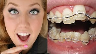 Braces Before And After | Time Lapse Transformation | Ashley Craig