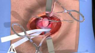 getlinkyoutube.com-Inguinal Hernia Surgery 3D Medical Animation - Open Procedure