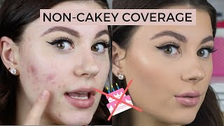 HOW-TO-COVER-ACNE-NON-CAKEY width=