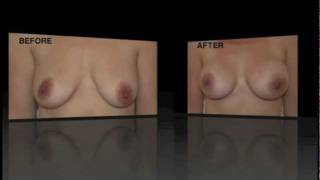 Breast Augmentation with Conical Implants Testimonial + Photos