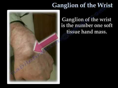 Ganglion Cyst Of The Wrist - Everything You Need To Know - Dr. Nabil Ebraheim