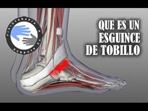 Esguince de tobillo, que es y que ocurre al torcernos un tobillo / Fisioterapia a tu alcance