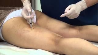 getlinkyoutube.com-閲覧注意!高須クリニック 若い女性のお尻、太ももの後面、内側、外側への脂肪溶解注射メソセラピー 垂れ下がったお尻を引き締めたり、大きいお尻を小さくします