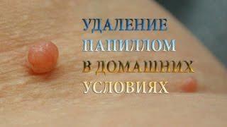 getlinkyoutube.com-УДАЛЕНИЕ ПАПИЛЛОМ, БОРОДАВОК, КОНДИЛОМ в домашних условиях, народными средствами