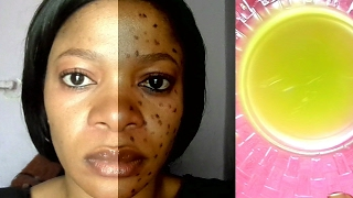 YOU WILL NEVER HAVE SPOTS AGAIN IF YOU WASH YOUR FACE WITH THIS MIXTURE BEFORE GOING TO BED