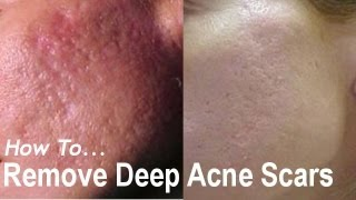 getlinkyoutube.com-REMOVE DEEP ACNE SCARS? Acne Scarring Removal Treatments! AQA #1