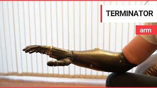 getlinkyoutube.com-'Terminator' arm is world's most advanced prosthetic limb