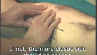 getlinkyoutube.com-FtM Phalloplasty Prep Massage