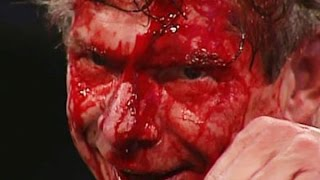 getlinkyoutube.com-10 Bloodiest WWE Matches Of All Time