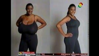 getlinkyoutube.com-MiddayLive - Medical Note  - Virginal hypertrophy of the breast - 23/2/2016