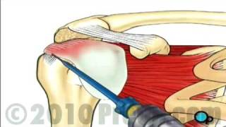 getlinkyoutube.com-Rotator Cuff Repair - Arthroscopic Surgery