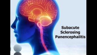 getlinkyoutube.com-Subacute sclerosing panencephalitis (SSPE)