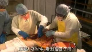 getlinkyoutube.com-Man Autopsy