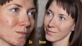 getlinkyoutube.com-Энзимный Пилинг: Акне / Прыщи / Морщины  / Пигментые пятна