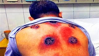 getlinkyoutube.com-Fire Cupping Gone Wrong! (Bacterial Infection)