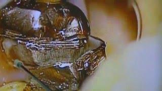 getlinkyoutube.com-噛むと痛い!保険の銀歯を外す。顕微鏡歯科・東京都渋谷区恵比寿