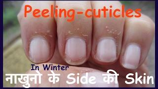 How To Get Rid Of Peeling Skin On Fingertips In Hindi  peeling cuticle | नाखुनो के Side की Skin width=