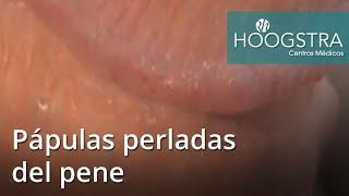 getlinkyoutube.com-Pápulas perladas del pene (15119)