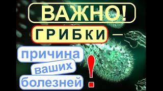 getlinkyoutube.com-Грибки- паразиты. Плесневые, дрожжевые грибки- микромицеты вызывают полипы, онкологию и т.д..
