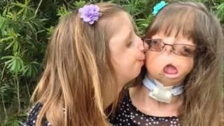 getlinkyoutube.com-Terribles y raras enfermedades genéticas