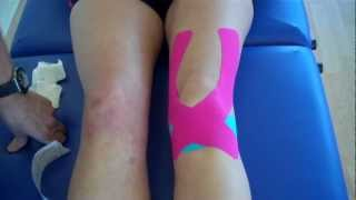 getlinkyoutube.com-How to apply Kinesiology Taping for Knee Pain - Patella tendonitis and Patella femoral pain