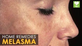 getlinkyoutube.com-Melasma Treatment (Cure) - Home Remedies | Health Tips