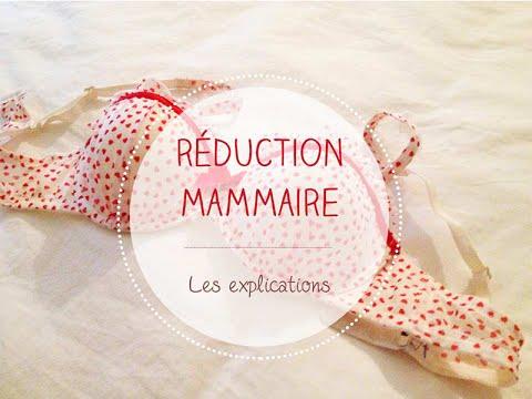 Ma réduction mammaire l Mon expérience ❤