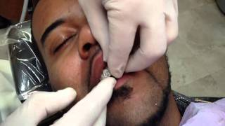 getlinkyoutube.com-Diamond Dental Crowns