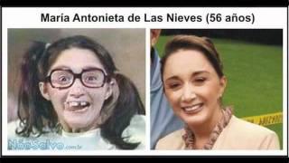 getlinkyoutube.com-Chaves , Antes e depois dos atores
