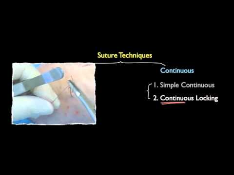 Suture Techniques: from Basics to Advanced