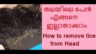 getlinkyoutube.com-തലയിലെ പേന് എങ്ങനെ  ഇല്ലാതാക്കാം/How to remove lice from head/No. 273