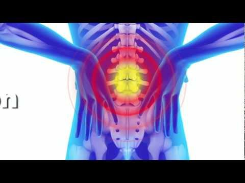 How Acupuncture Can Help With Back Pain | Acupuncture Bethel Wilton Fairfield CT
