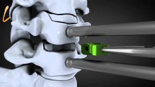 getlinkyoutube.com-Hernie discale cervicale - Spinal disk herniation - Kisco International