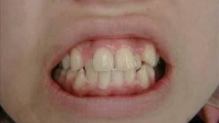 getlinkyoutube.com-八重歯の歯並び治療 歯列矯正歯科矯正 セラミック矯正 クイック矯正