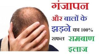 getlinkyoutube.com-गंजापन और बालों के झड़ने का  सफल रामबाण उपचार   Hair Loss Treatment, Ganjepan Ka ilaj