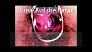 getlinkyoutube.com-||18+ ONLY || Don't watch if weak stomach || Vaginal Discharge Guide (HD) || Graphic