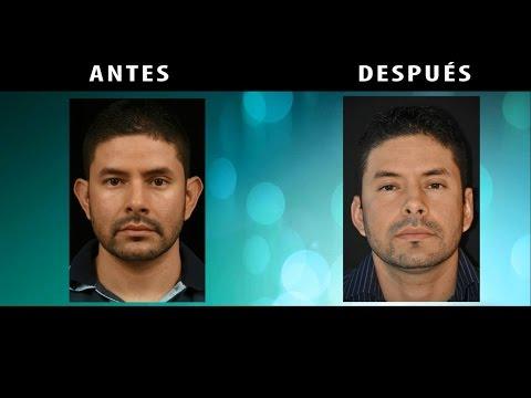 Otoplastia Con anestesia Local Antes y Después Medellín Colombia