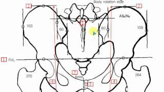 getlinkyoutube.com-pelvic x ray line drawing