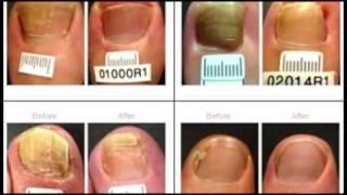 getlinkyoutube.com-Toenail Fungus Treatment