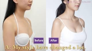 getlinkyoutube.com-ศัลยกรรมหน้าอกเกาหลีของเจดับบลิว