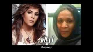getlinkyoutube.com-فنانات عربيات قبل و بعد عمليات التجميل