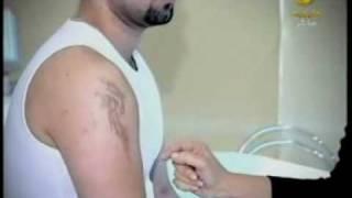 getlinkyoutube.com-كيفية التخلص من الوشم بأحدث الطرق التجميلية الطبية