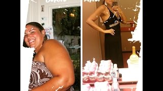 getlinkyoutube.com-Before & After Gastric Sleeve