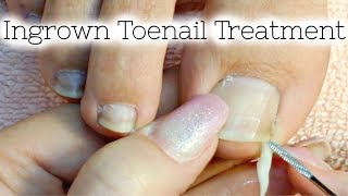 👣 Pedicure Tutorial Ingrown Toenail Treatment At Home How to Recut Nail Groove to Eliminate Pain width=