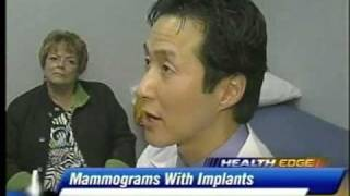 Breast Cancer Screening in Women with Implants Detroit Michigan.mp4