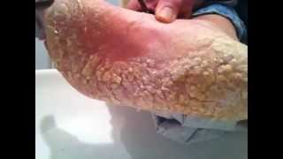 getlinkyoutube.com-Dry cracked foot skin