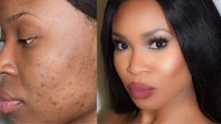 getlinkyoutube.com-How to cover scars and dark spots - Highlight and Contour