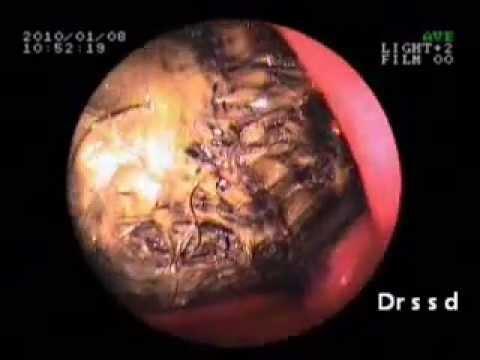 pilonidal cyst hairball