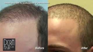 getlinkyoutube.com-Los Angeles FUE Hair transplant : Buzz cut after body hair transplant and strip scar repair.